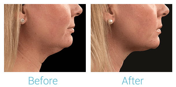 CoolSculpting Gallery - Patient 58151963 - Image 2