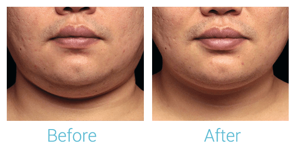 CoolSculpting Gallery - Patient 58151966 - Image 1