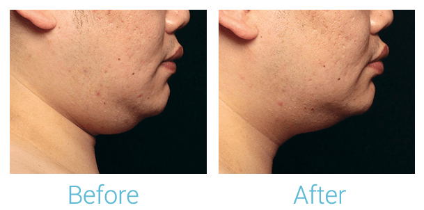 CoolSculpting Gallery - Patient 58151966 - Image 2