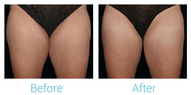 CoolSculpting Gallery - Patient 58152010 - Image 1