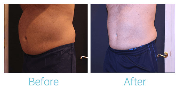 CoolSculpting Gallery - Patient 58152011 - Image 2