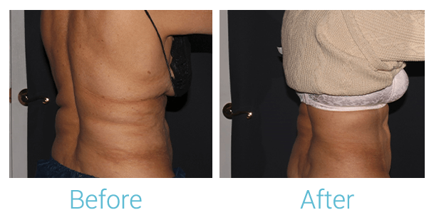 CoolSculpting Gallery - Patient 58152012 - Image 3