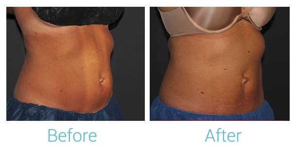CoolSculpting Gallery - Patient 58152013 - Image 1