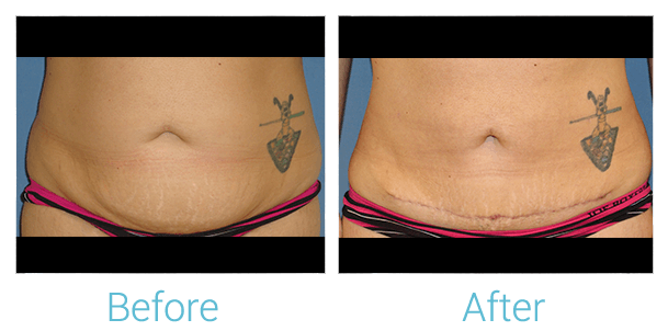 Liposuction Gallery - Patient 58152019 - Image 1