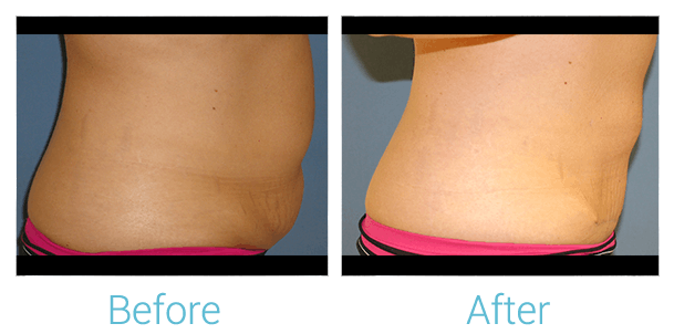 Liposuction Gallery - Patient 58152019 - Image 2