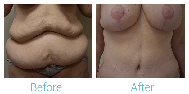 Tummy Tuck Gallery - Patient 58152086 - Image 1