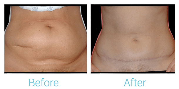 Tummy Tuck Gallery - Patient 58152077 - Image 1