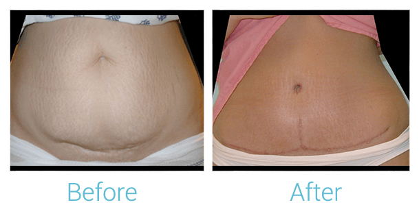 Tummy Tuck Gallery - Patient 58152050 - Image 1