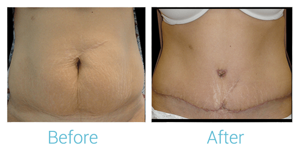 Tummy Tuck Gallery - Patient 58152051 - Image 1