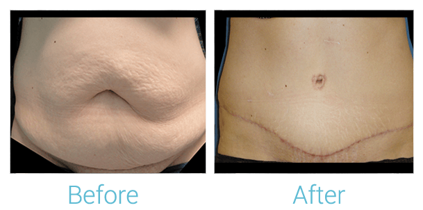 Tummy Tuck Gallery - Patient 58152052 - Image 1