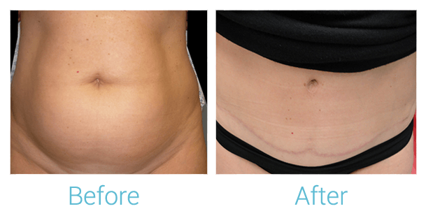Tummy Tuck Gallery - Patient 58152054 - Image 1