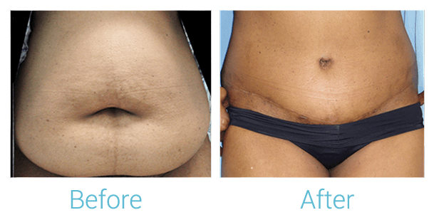 Tummy Tuck Gallery - Patient 58152055 - Image 1