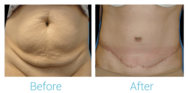 Tummy Tuck Gallery - Patient 58152060 - Image 1
