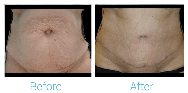 Tummy Tuck Gallery - Patient 58152061 - Image 1