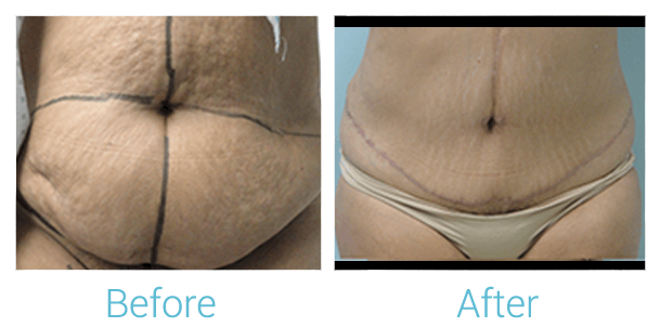 Tummy Tuck Gallery - Patient 58152062 - Image 1