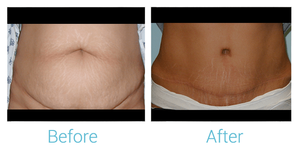 Tummy Tuck Gallery - Patient 58152063 - Image 1