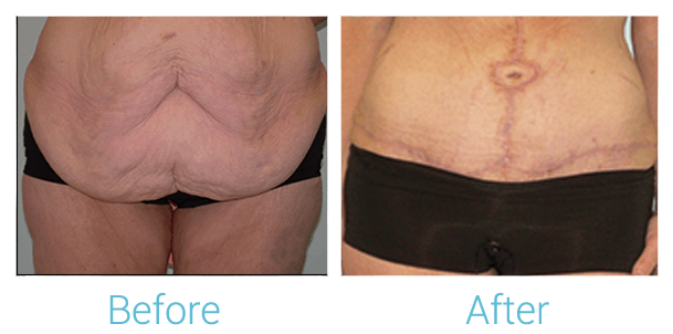 Tummy Tuck Gallery - Patient 58152065 - Image 1