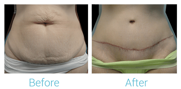 Tummy Tuck Gallery - Patient 58152074 - Image 1
