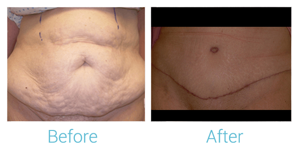 Tummy Tuck Gallery - Patient 58152075 - Image 1