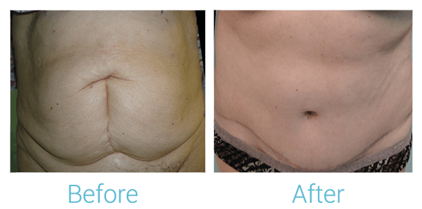 Tummy Tuck Gallery - Patient 58152076 - Image 1
