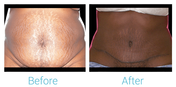 Tummy Tuck Gallery - Patient 58152078 - Image 1