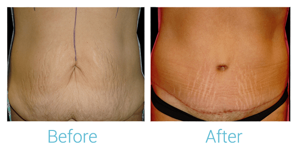 Tummy Tuck Gallery - Patient 58152079 - Image 1