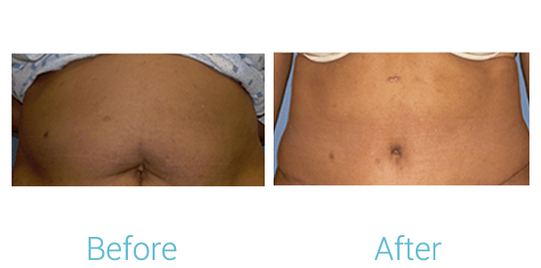 Tummy Tuck Gallery - Patient 58152080 - Image 1