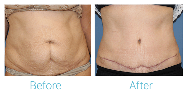 Tummy Tuck Gallery - Patient 58152081 - Image 1