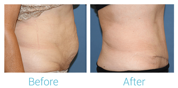 Tummy Tuck Gallery - Patient 58152081 - Image 2
