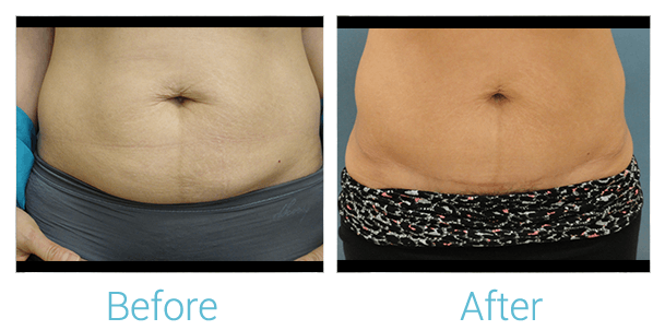 Tummy Tuck Gallery - Patient 58152082 - Image 1