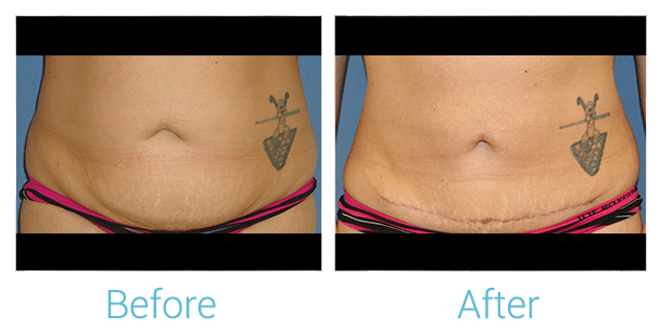 Tummy Tuck Gallery - Patient 58152083 - Image 1