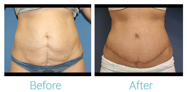 Tummy Tuck Gallery - Patient 58152084 - Image 1