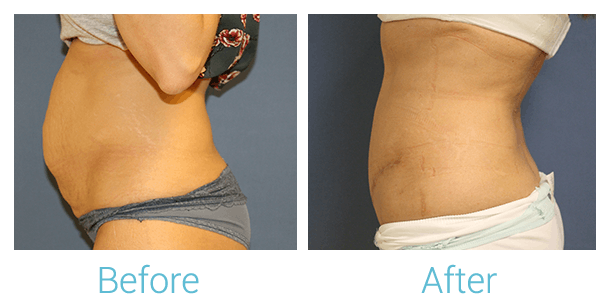 Tummy Tuck Gallery - Patient 58152085 - Image 1