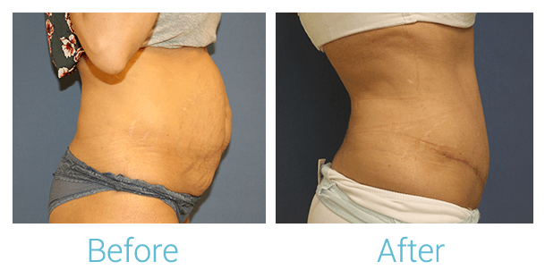 Tummy Tuck Gallery - Patient 58152085 - Image 2