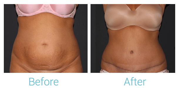 Tummy Tuck Gallery - Patient 58152087 - Image 1