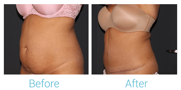 Tummy Tuck Gallery - Patient 58152087 - Image 2