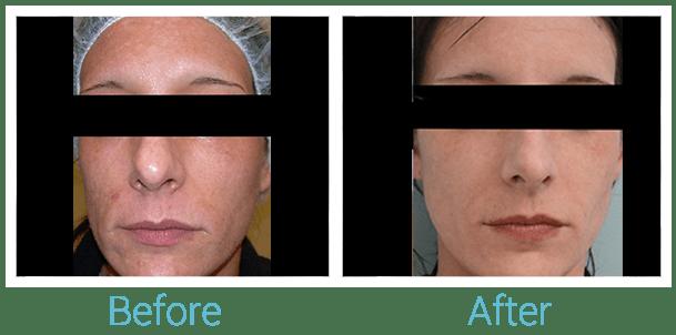 CO2 Laser Skin Resurfacing Gallery - Patient 58152098 - Image 1