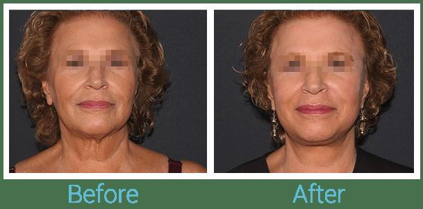 CO2 Laser Skin Resurfacing Gallery - Patient 58152100 - Image 1