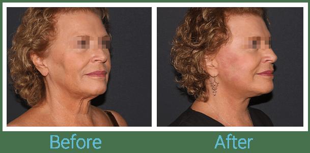 Facelift Gallery - Patient 58152102 - Image 2