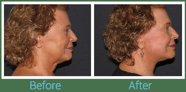 Facelift Gallery - Patient 58152102 - Image 3