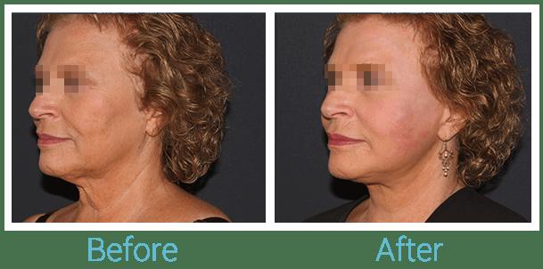 Facelift Gallery - Patient 58152102 - Image 4