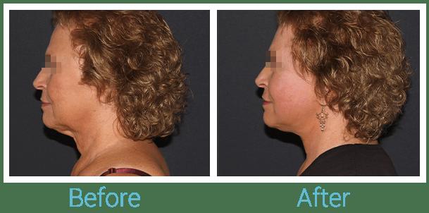 Facelift Gallery - Patient 58152102 - Image 5