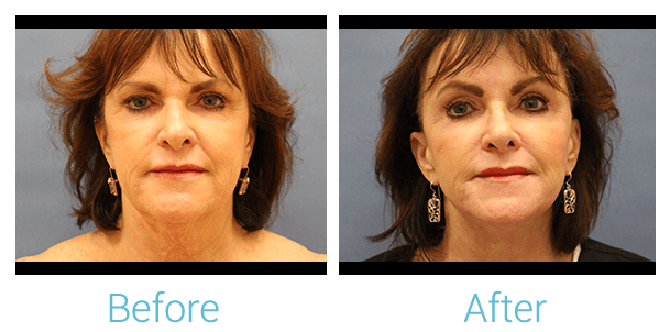 Facelift Gallery - Patient 58152101 - Image 1