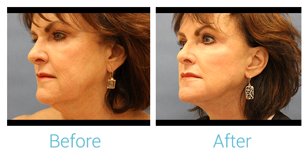 Facelift Gallery - Patient 58152101 - Image 2