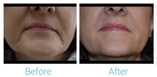 Lower Face Filler Gallery - Patient 58152116 - Image 1