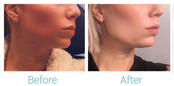 Lower Face Filler Gallery - Patient 58152117 - Image 1