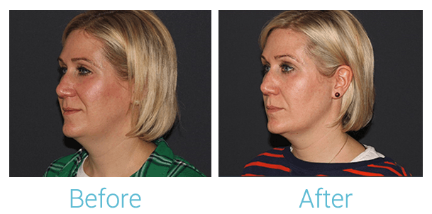 Lower Face Filler Gallery - Patient 58152118 - Image 1