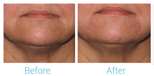 Lower Face Filler Gallery - Patient 58152119 - Image 1