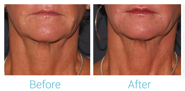 Lower Face Filler Gallery - Patient 58152120 - Image 1