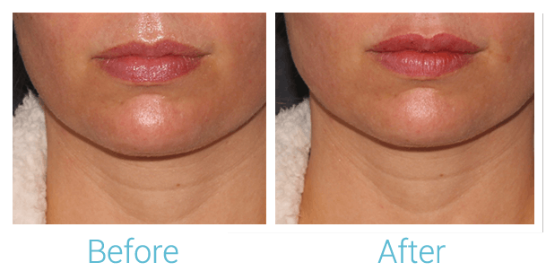Lower Face Filler Gallery - Patient 58152121 - Image 1
